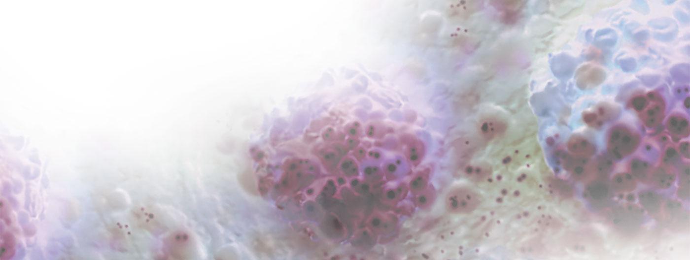 HCC-slider-background-image